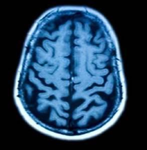 Anatomy of a Brain